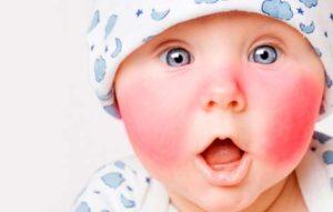 Быстрое и безопасное лечение диатеза на щеках у ребенка: лекарства и рецепты народной медицины