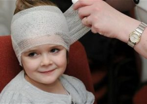 Симптомы сотрясения головного мозга у детей и способы лечения