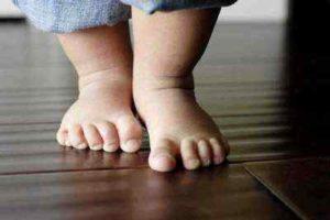 Признаки рахита у детей до 1 года и методы лечения болезни