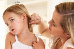 Чем снять зуд при ветрянке у ребенка: таблетки, мази, народные методы