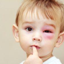 Отек квинке у детей: симптомы и грамотное оказание помощи до приезда врача